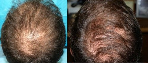 Male Case Study 1 - Before ACell Crown