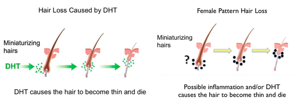 DHT causing hair to thin male and female