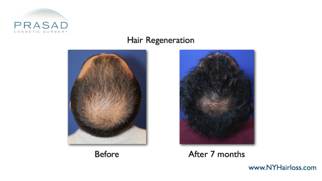 Hair Regeneration for male pattern hairloss before and after 7 months