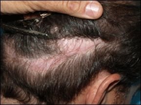 Scarring in old hair transplant donor areas