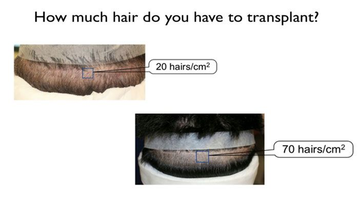 how much hair needed to transplant