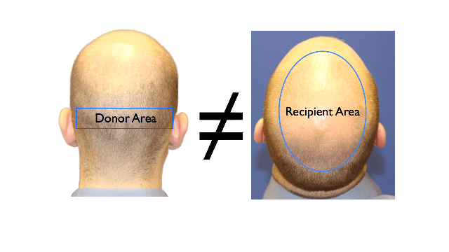 donor area and recipient area mismatch