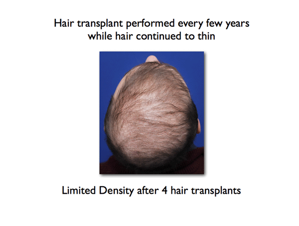 poor-density-after-several-hair-transplants